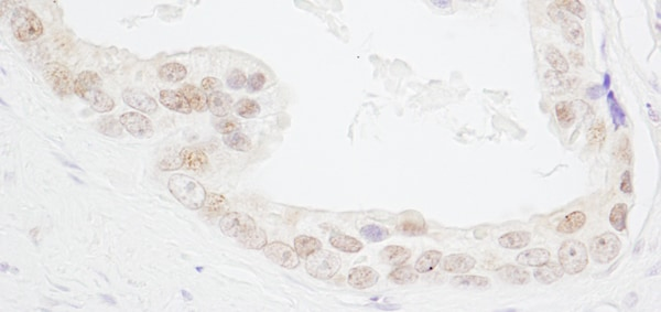 Immunohistochemistry (Formalin/PFA-fixed paraffin-embedded sections) - Anti-HMGN3 antibody (ab72232)