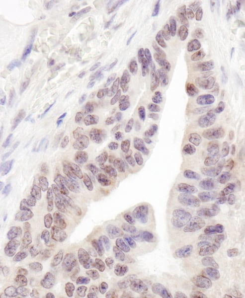Immunohistochemistry (Formalin/PFA-fixed paraffin-embedded sections) - Anti-RBM12 antibody (ab72320)