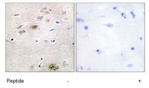 Immunohistochemistry (Formalin/PFA-fixed paraffin-embedded sections) - Anti-TRA2A antibody (ab72625)