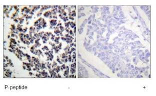 Immunohistochemistry (Formalin/PFA-fixed paraffin-embedded sections) - Anti-BLNK (phospho Y96) antibody (ab73204)