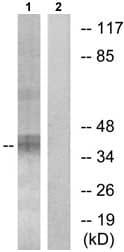 Western blot - Anti-LAT (phospho Y171) antibody (ab73205)