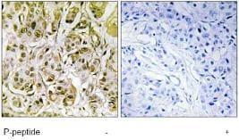 Immunohistochemistry (Formalin/PFA-fixed paraffin-embedded sections) - Anti-Smad1 (phospho S187) antibody (ab73211)