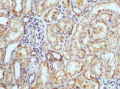 Immunohistochemistry (Formalin/PFA-fixed paraffin-embedded sections) - Anti-Osteoprotegerin antibody (ab73400)
