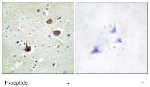 Immunohistochemistry (Formalin/PFA-fixed paraffin-embedded sections) - Anti-CXCR4 (phospho S339) antibody (ab74012)