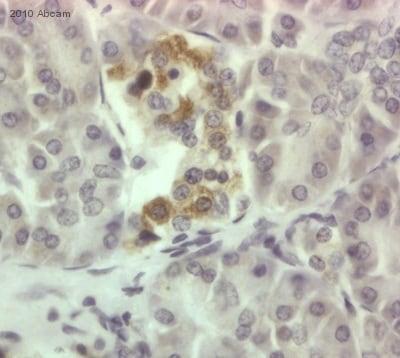 Immunohistochemistry (Formalin/PFA-fixed paraffin-embedded sections) - Anti-CDKAL1 antibody (ab74020)