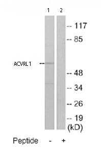 Western blot - Anti-ACVRL1 antibody (ab74039)