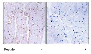 Immunohistochemistry (Formalin/PFA-fixed paraffin-embedded sections) - Anti-AKAP13 antibody (ab74048)