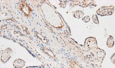 Immunohistochemistry (Formalin/PFA-fixed paraffin-embedded sections) - Anti-CD32B (phospho Y292) antibody (ab74092)