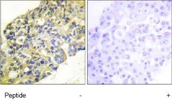 Immunohistochemistry (Formalin/PFA-fixed paraffin-embedded sections) - Anti-PI 3 Kinase p85 alpha + Gamma antibody (ab74136)