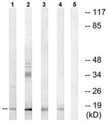 Western blot - Anti-NDUFA4L2 antibody (ab74138)