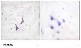 Immunohistochemistry (Formalin/PFA-fixed paraffin-embedded sections) - Anti-Syndecan 4 antibody (ab74139)