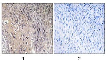 Immunohistochemistry (Formalin/PFA-fixed paraffin-embedded sections) - Anti-RhoGDI (phospho S174) antibody (ab74142)