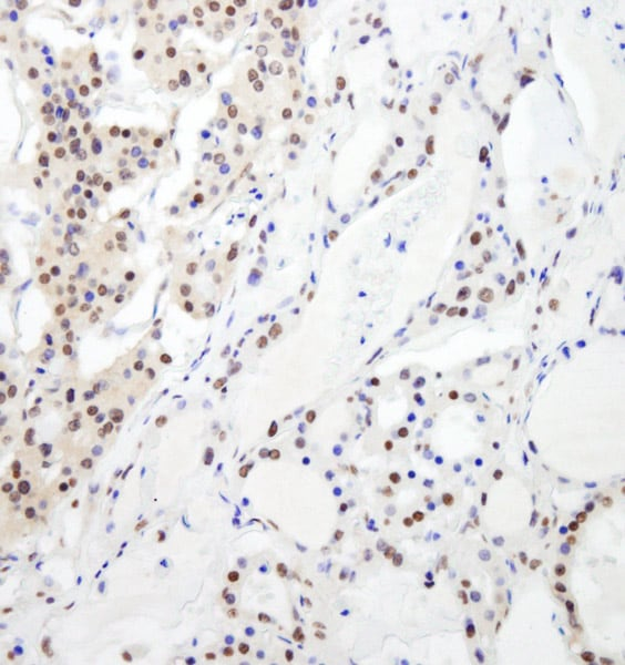 Immunohistochemistry (Formalin/PFA-fixed paraffin-embedded sections) - Anti-RBM26 antibody (ab74197)