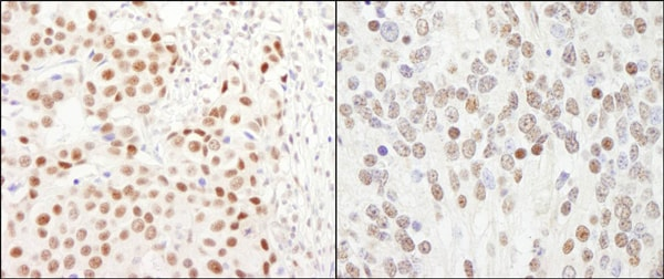 Immunohistochemistry (Formalin/PFA-fixed paraffin-embedded sections) - Anti-GTF3C5 antibody (ab74305)