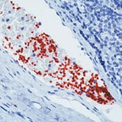Immunohistochemistry (Formalin/PFA-fixed paraffin-embedded sections) - Anti-CD42b antibody [42C01], prediluted (ab74449)