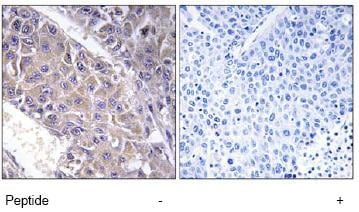 Immunohistochemistry (Formalin/PFA-fixed paraffin-embedded sections) - Anti-B4GALT3 antibody (ab74825)