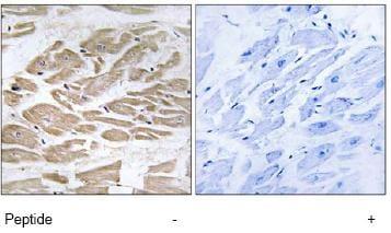 Immunohistochemistry (Formalin/PFA-fixed paraffin-embedded sections) - Anti-BRP44L antibody (ab74871)
