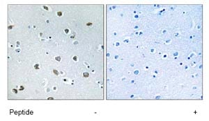 Immunohistochemistry (Formalin/PFA-fixed paraffin-embedded sections) - Anti-NXPH4 antibody (ab74999)