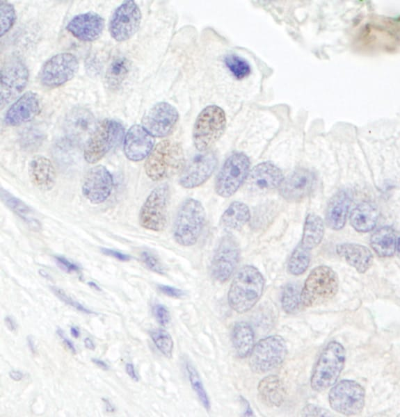 Immunohistochemistry (Formalin/PFA-fixed paraffin-embedded sections) - Anti-TFIIIC / GTF3C1 antibody (ab75251)