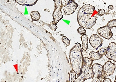 Immunohistochemistry (Formalin/PFA-fixed paraffin-embedded sections) - Anti-MC4 Receptor antibody (ab75506)