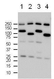 Western blot - Anti-PARP1 antibody (ab75607)