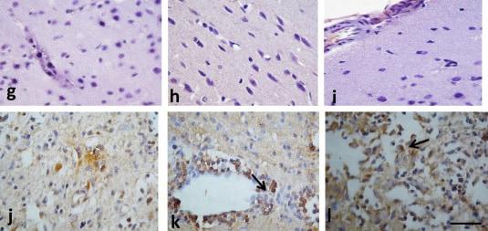 Immunohistochemistry (Formalin/PFA-fixed paraffin-embedded sections) - Anti-eNOS (phospho S1177) antibody (ab75639)
