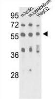 Western blot - Anti-MeCP2 antibody (ab75716)