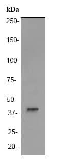 Western blot - Anti-Aldolase B antibody [EPR3138Y] (ab75751)