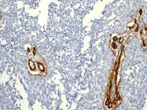 Immunohistochemistry (Formalin/PFA-fixed paraffin-embedded sections) - Anti-CD146 antibody [EPR3208] (ab75769)