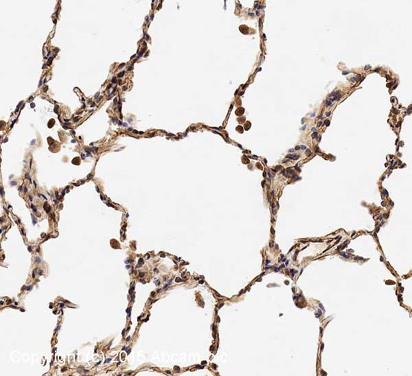 Immunohistochemistry (Formalin/PFA-fixed paraffin-embedded sections) - Anti-GNAQ antibody (ab75825)