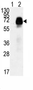 Western blot - Anti-AMHR2 antibody - Aminoterminal end (ab75845)
