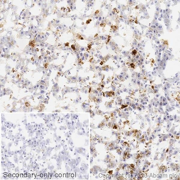 Immunohistochemistry (Frozen sections) - Anti-Cathepsin D antibody [EPR3057Y] (ab75852)