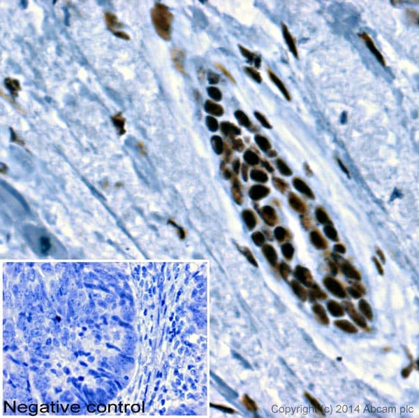 Immunohistochemistry (Formalin/PFA-fixed paraffin-embedded sections) - Anti-SSB [mAbcam75927] antibody (ab75927)