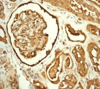 Immunohistochemistry (Formalin/PFA-fixed paraffin-embedded sections) - Anti-Ferritin Heavy Chain antibody [EPR3005Y] (ab75972)