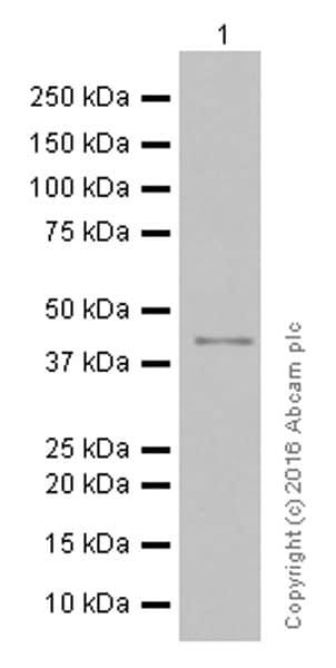 Western blot - Anti-TTF1 antibody [EP1584Y] (ab76013)