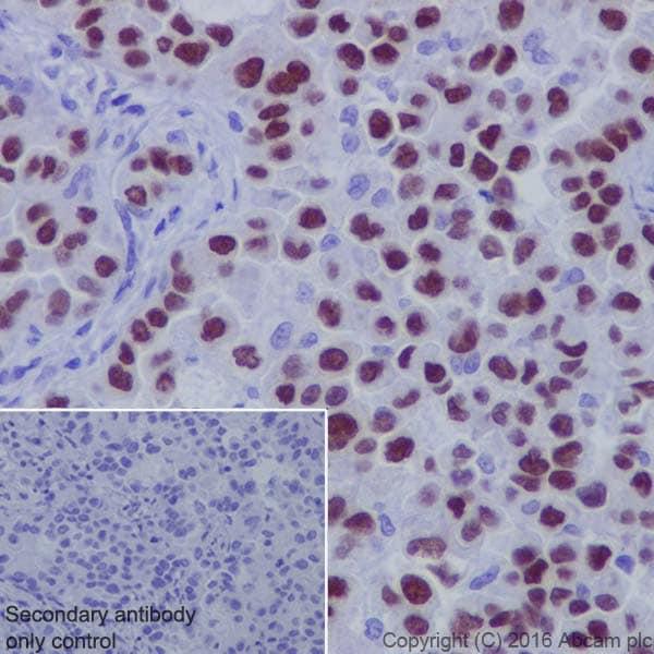免疫组织化学(福尔马林/PFA固定石蜡切片)-抗TTF1抗体[EP1584Y](ab76013)