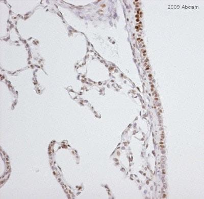 Immunohistochemistry (Formalin/PFA-fixed paraffin-embedded sections) - Anti-Nrf2 (phospho S40) antibody [EP1809Y] (ab76026)