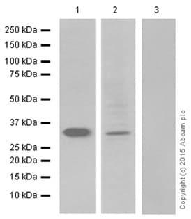 Western blot - Anti-Prostate Specific Antigen antibody [EP1588Y] (ab76113)