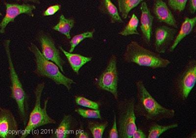 免疫细胞化学/免疫荧光-抗YB1抗体[EP2708Y](ab76149)