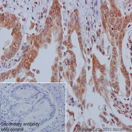 Immunohistochemistry (Formalin/PFA-fixed paraffin-embedded sections) - Anti-YB1 antibody [EP2708Y] (ab76149)