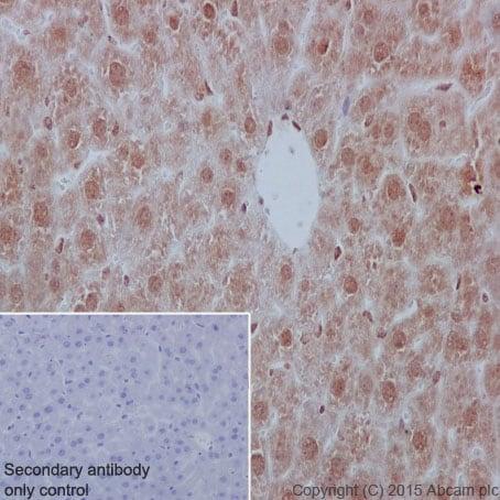免疫组织化学(福尔马林/PFA固定石蜡切片)-抗YB1抗体[EP2708Y](ab76149)