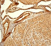 Immunohistochemistry (Formalin/PFA-fixed paraffin-embedded sections) - Filamin A antibody [EP2405Y] - Carboxyterminal end (ab76289)