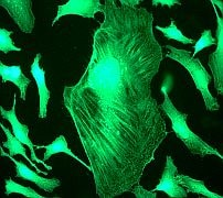 Immunocytochemistry/ Immunofluorescence - Filamin A antibody [EP2405Y] - Carboxyterminal end (ab76289)