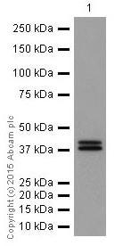 Western blot - Anti-Erk1 (pT202/pY204) + Erk2 (pT185/pY187) antibody [EP197Y] (ab76299)