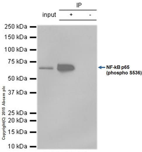 Immunoprecipitation - Anti-NF-kB p65 (phospho S536) antibody [EP2294Y] (ab76302)