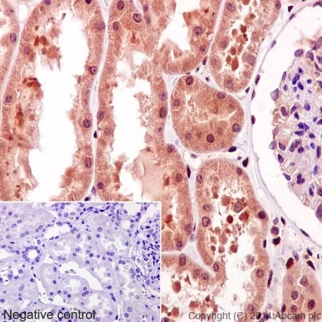 Immunohistochemistry (Formalin/PFA-fixed paraffin-embedded sections) - Anti-STAT3 (phospho Y705) antibody [EP2147Y] (ab76315)
