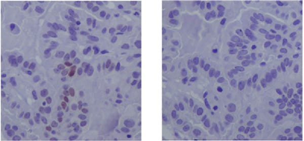 Immunohistochemistry (Formalin/PFA-fixed paraffin-embedded sections) - Anti-STAT3 (phospho Y705) antibody [EP2147Y] (ab76315)