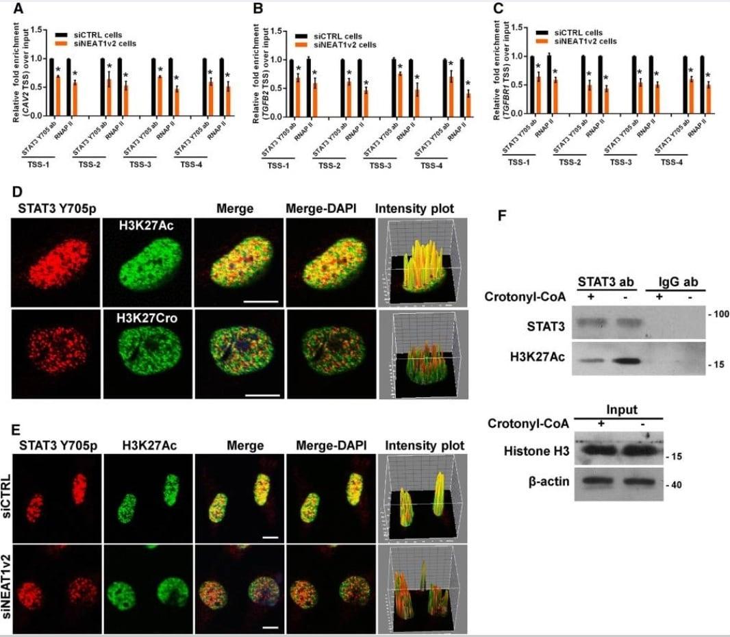 Immunocytochemistry/ Immunofluorescence - Anti-STAT3 (phospho Y705) antibody [EP2147Y] (ab76315)