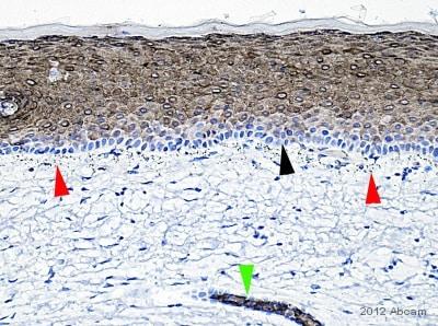 免疫组化(福尔马林/PFA固定石蜡切片)抗细胞角蛋白10抗体[EP1607IHCY](AB76318)