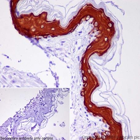 免疫组化(福尔马林/PFA固定石蜡切片)抗细胞角蛋白10抗体[EP1607IHCY] - Cytoskeleton Marker(AB76318)